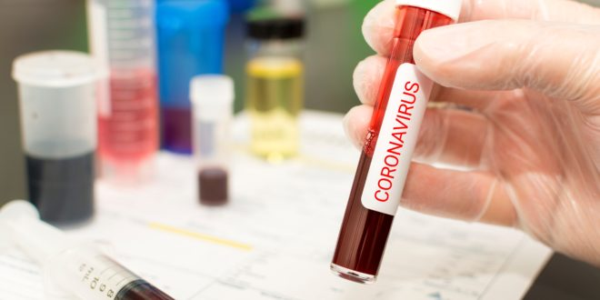 How worried should parents be about 2019 novel coronavirus? Washington FAMILY spoke to an infectious disease specialist about this new respiratory virus.